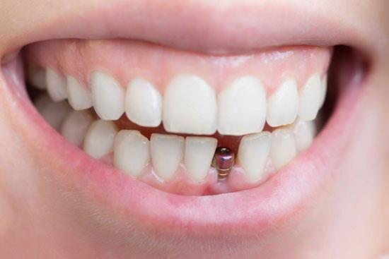 بهترین ایمپلنت دندان؛ ایمپلنت کره ای یا ایمپلنت سوئیسی؟