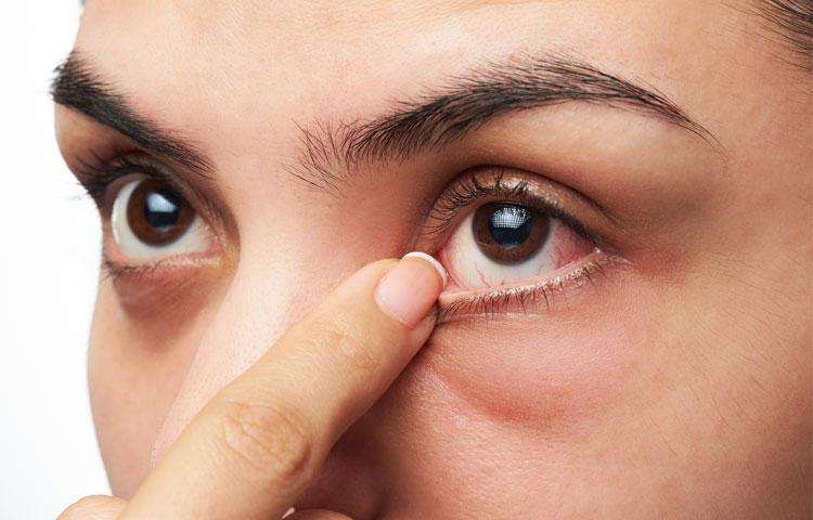 تبخال چشم؛ علائم و درمان