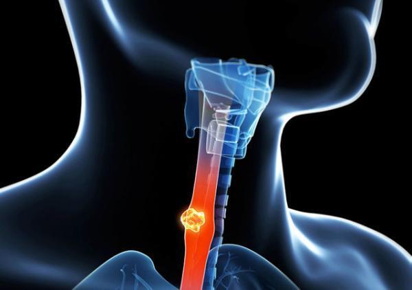 تاثیر نوعی باکتری در مهار سلول های سرطانی مری